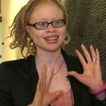 'Witchcraft' beliefs trigger attacks against people with albinism, UN expert warns