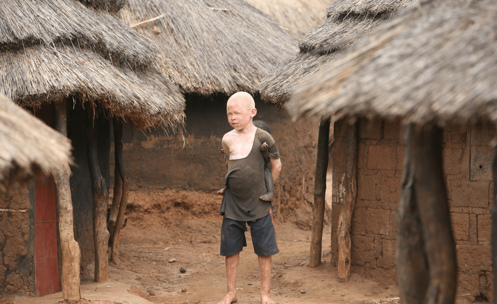 Child with albinism standing in between straw huts