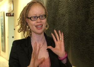 Statement by UN Independent Expert on enjoyment of human rights by persons with albinism