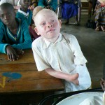 Broken bodies: hunting persons with albinism in Tanzania