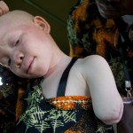 Hunting for muti: the chase for people with albinism