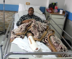 Saleh Issa lying bed with right leg in plaster