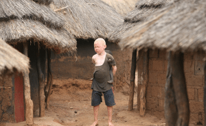 Attacks on people with albinism in Africa: European Parliament calls for end to impunity